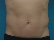 PLIP_abdomen_M_3M.jpg
