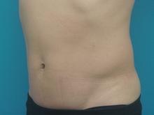 PLIP_abdomen_M_left_lateral_3M.jpg
