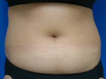plasma_abdomen_before.jpg