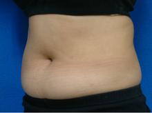 plasma_abdomen_left_after.jpg