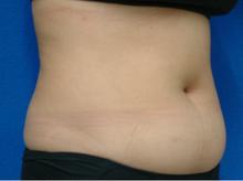 plasma_abdomen_right_before.jpg