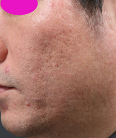 Acne_scar_2__before.jpg
