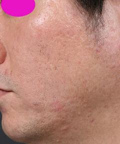 Acne_scar_2_after.jpg