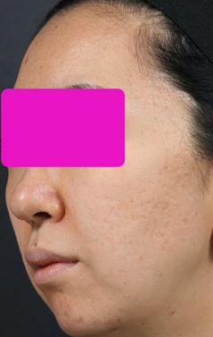 Acne_scar_3__after.jpg