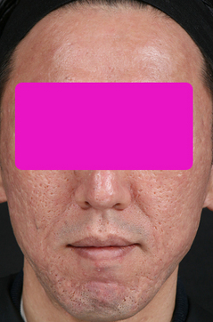 Acne_scar_after.jpg