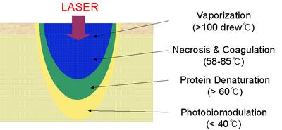 Fractional_laser.jpg