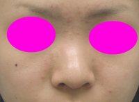 EP_nose_front_before_ad.jpg