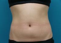 LIP7_abdomen_front_after.jpg