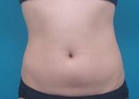 LIP7_abdomen_front_before.jpg