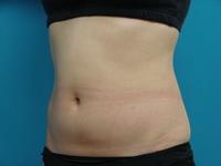 LIP7_abdomen_left_front_after.jpg