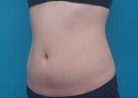 LIP7_abdomen_left_front_before.jpg