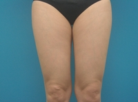 LIP7_thigh_knee_front_1M_after.JPG