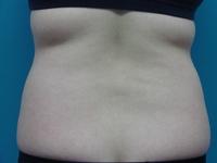 徹底的にお腹回りを強力脂肪溶解注射 | 強力脂肪溶解注射