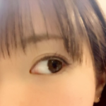 目頭・目尻の美容整形・美容外科