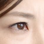 目の下のくま 経結膜眼窩脂肪除去