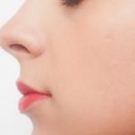 鼻の美容外科・美容整形の概要 Overview of rhinoplasty
