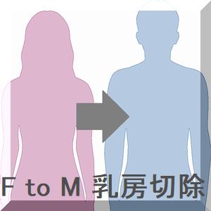 F to M 乳房切除