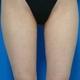 強力脂肪溶解注射の長期経過(太もも+ヒップ)
