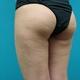 太ももに強力脂肪溶解注射