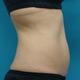 下腹部に強力脂肪溶解注射
