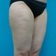 強力脂肪溶解注射(太もも外側と膝周囲)