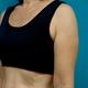 腕の強力脂肪溶解注射 2