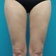 強力脂肪溶解注射 ヒップ+太もも