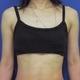 腕の強力脂肪溶解注射 1