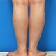 ふくらはぎ+足首の強力脂肪溶解注射 1